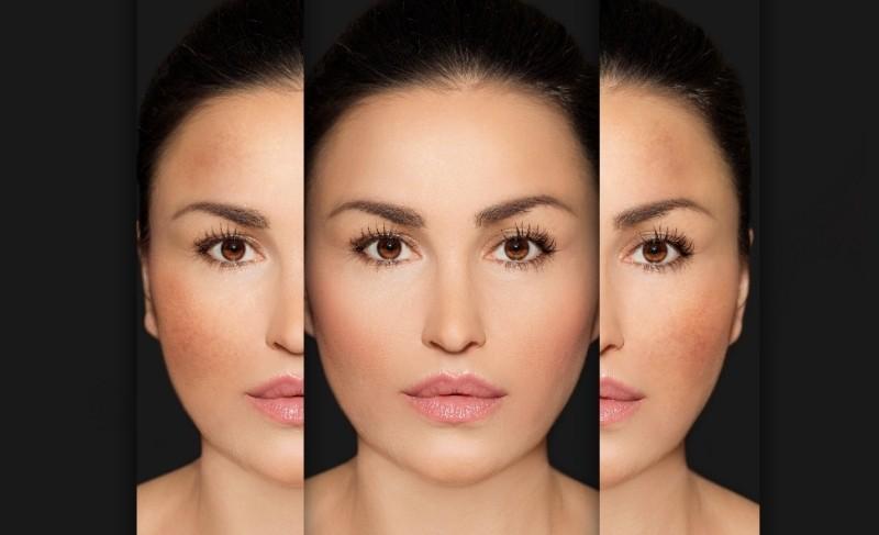 How Melanin (Dark Pigmentation) Works